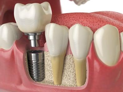 dental implants in jaw bone graft