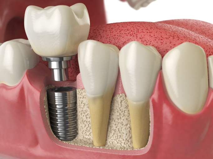 Dental-Implants-Market