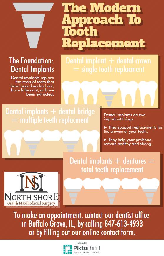 What Do Dental Implants Do?