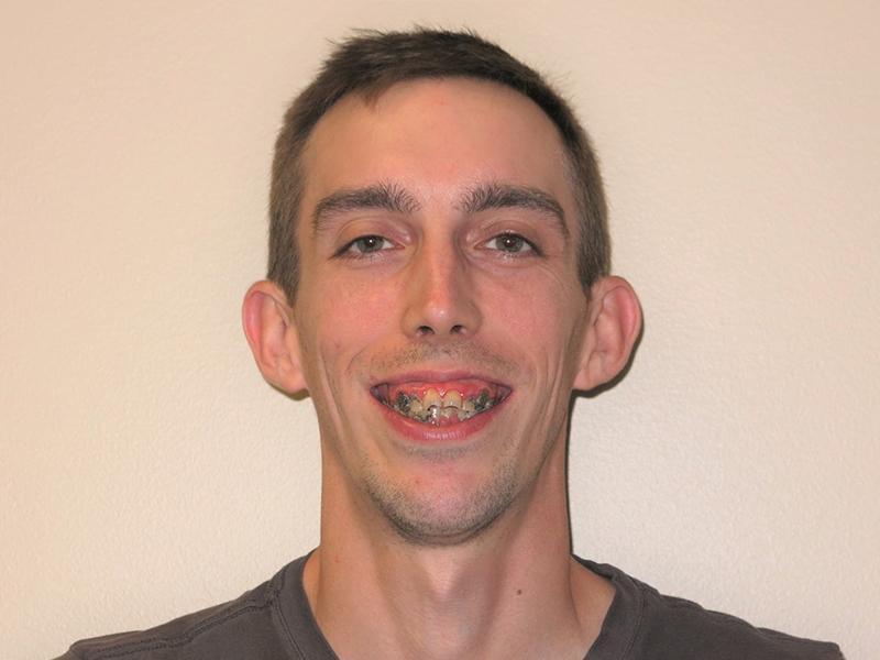 Full Arch Dental Implant in Buffalo Grove
