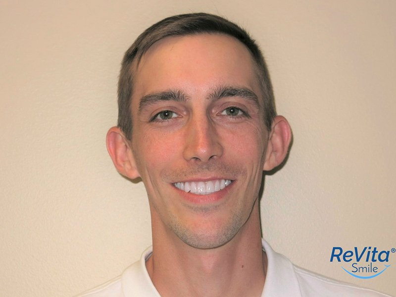 All-on-4 Dental Implants in Buffalo Grove