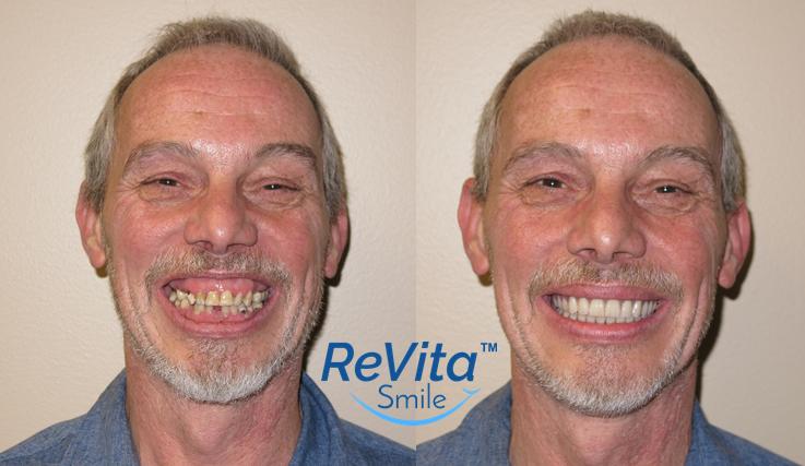 ReVita Smile Before-After_Vincent-2