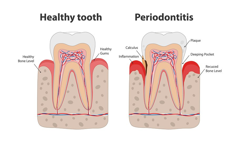bigstock-Healthy-Tooth-And-Unhealthy-To-306806815