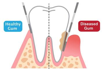 gum disease vs healthy gums periodontist