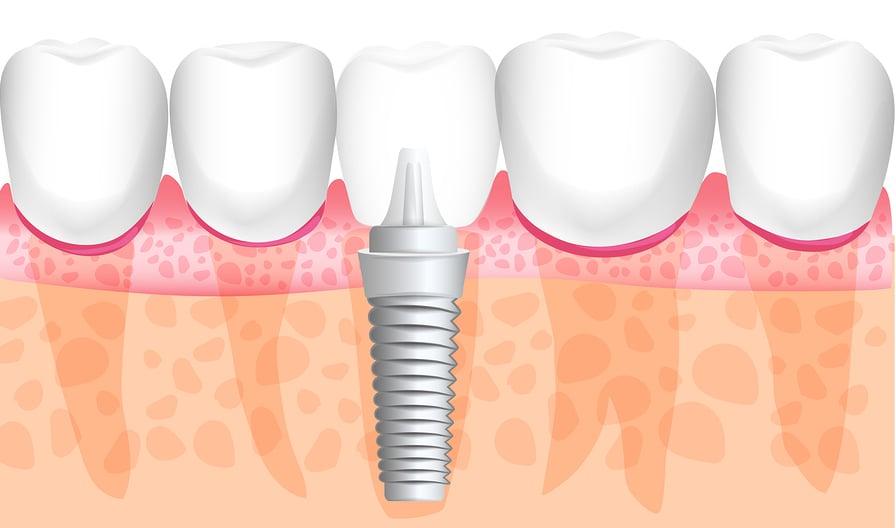 dental implant screwed into jaw bone graft in mouth teeth