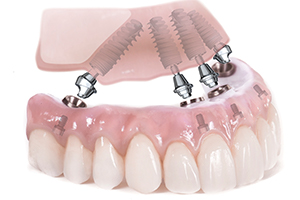 BONE GRAFTING CAN BE AVOIDED