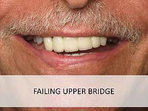 Failing Upper Bridge